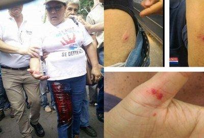 Heridos durante protesta