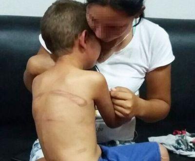 Imputada por brutal castigo