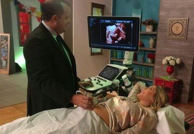 Denisse vio a su bebé en ecografía 5D