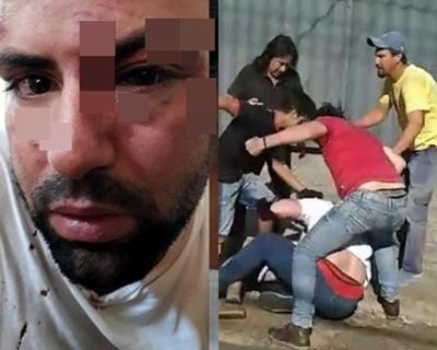 Orden de arresto para supuestos agresores de Carlos Travieso