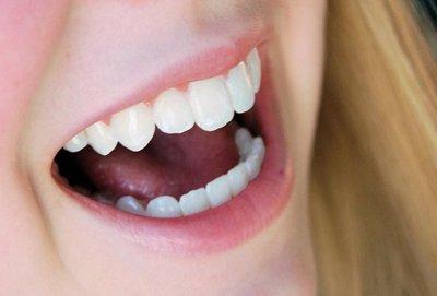 Ortodoncia no asegura la salud bucal a largo plazo, según estudio