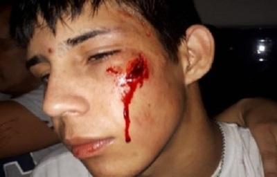 Heridos y lesionados durante barralla campal en partido de fútbol de salón