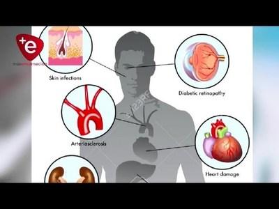 Hipoglucemia, gravedad y cómo intervenir en situaciones