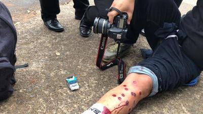 Heridos por balines de goma tras enfrentamiento entre Taxistas y la Policía