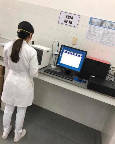 Concepción cuenta prueba automatizada para diagnóstico de tuberculosis