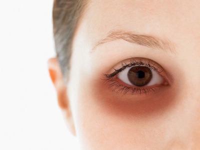 ¿Cómo combatir las ojeras, con remedios naturales?