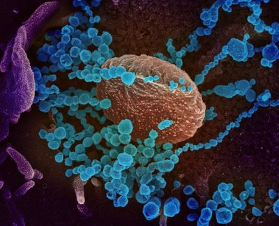 Aumentan los casos de coronavirus en América Latina