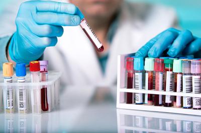 La Universidad Nacional de Asunción realizará test de Coronavirus