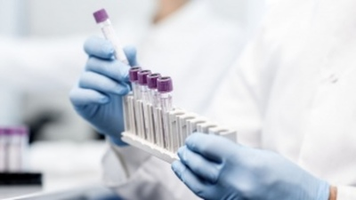 Científicos rusos crean un test de cáncer de próstata similar a la prueba de embarazo