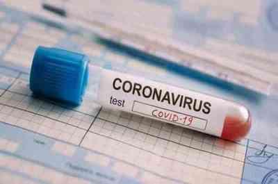Paraguay: Suman 52 nuevos positivos de COVID-19, 13 de ellos son casos sin nexo