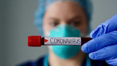 Informe Covid-19: 128 nuevos casos, 26 sin nexo