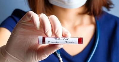 Confirman un nuevo fallecido y 128 casos de coronavirus