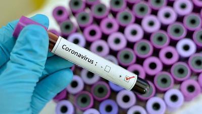 Confirman 9 casos positivos de Covid-19 en comunidad indígena de San Pedro