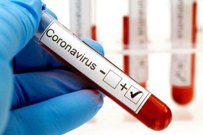 Detectan nueve casos de Covid-19 en comunidad indígena