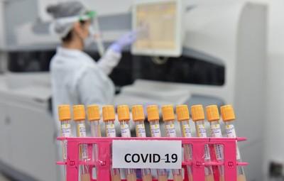 En la FRONTERA hay 3.319 casos de COVID19, cifra superior al que registra el Paraguay