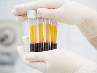 Senadores dan vía libre a utilización experimental de plasma de recuperados de Covid-19