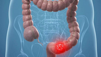 Cáncer de colon es prevenible a través de una buena alimentación