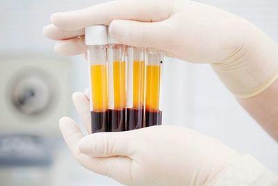 Estudiarán el uso del análisis rápido para detectar el coronavirus en niños y adolescentes