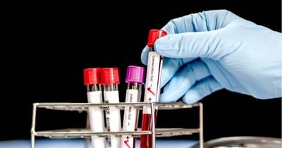 Caaguazú reporta 7 nuevos casos de coronavirus