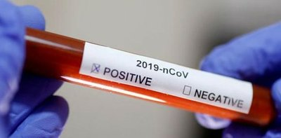 Covid-19: informan de 341 casos nuevos en 24 horas