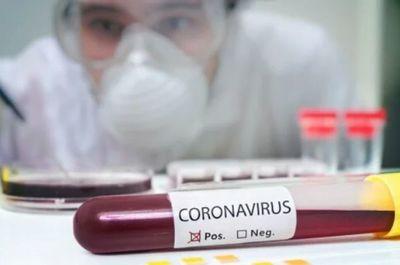 Covid-19: Salud registra 159 nuevos casos