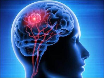 Descubren cómo algunos tumores cerebrales esquivan quimioterapia