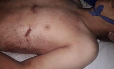 Adolescente es asesinado tras discusión en ronda de tragos