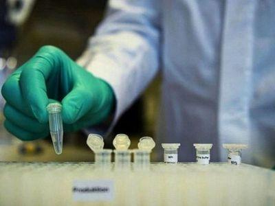 Covid-19: Salud reporta cinco nuevas muertes y 315 contagios