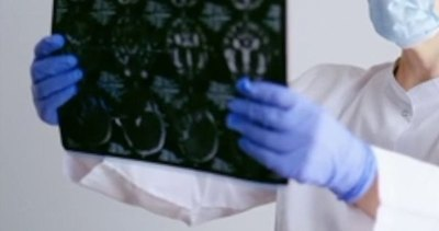 Ojetopá una bala en el cerebro de mitã'i ndaje