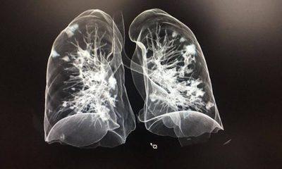 """COVID-19 CDE: """"Nos llegan pacientes con pulmones destrozados"""""""