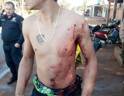 Un sujeto con prontuario policial es  atacado y baleado frente a su casa – Diario TNPRESS