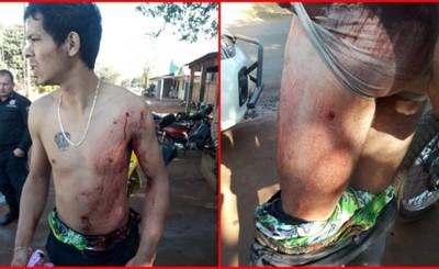 Por aparente venganza un joven es baleado frente a su casa