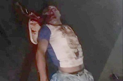 Transeúnte sobrevive tras ser arrollado por dos automóviles sobre avenida Bernardino Caballero – Diario TNPRESS
