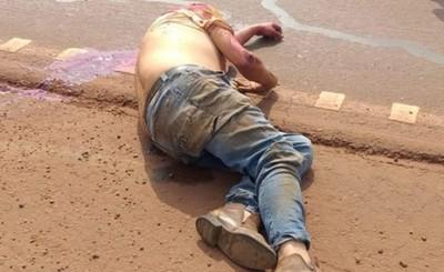 Explosión de neumático deja a dos motociclistas hospitalizados