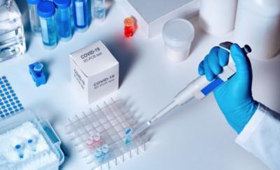 HOY / Laboratorio brasileño enviará kits de muestras de covid-19 al país