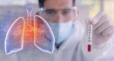 Covid-19: Salud Pública registra nuevo récord de 25 fallecidos y 695 contagios