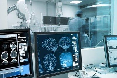 Científicos evalúan si el COVID-19 se relaciona con la enfermedad de Parkinson