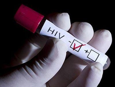 VIH y juventud: 53% de casos tienen entre 24 y 35 años