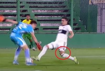 Imágenes sensibles: Hugo Fernández sufrió una dura lesión