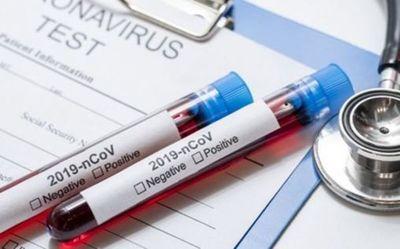 Reportan 16 fallecidos por COVID-19 y 833 nuevos contagiados