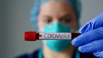 Salud reporta 21 fallecidos y 696 casos nuevos de coronavirus