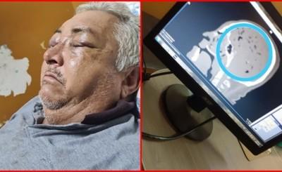 Costillas rotas y lesiones en la cabeza tras ser agredido por su hijo