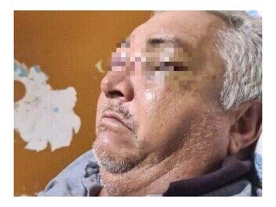 Golpeó con hierro a su papá y le hundió la cara