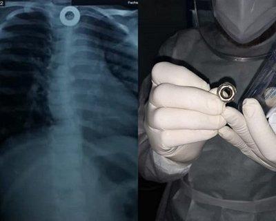 Médicos del Ineram extraen una tuerca del esófago a una niña de 5 años