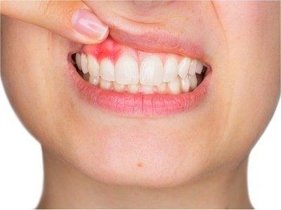 Desentrañan cómo la periodontitis puede causar demencia