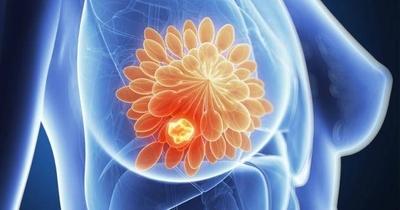 HOY / Mitos y verdades sobre el cáncer: ¿Aumenta el riesgo con el uso de desodorante y con implante mamario?