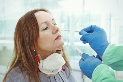 Salud informa sobre 19 muertes y 728 nuevos contagios de coronavirus