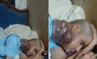 Hombre con tumor en el cuello urge de asistencia – Prensa 5