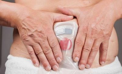 HOY / Pacientes de Colostomía exigen la liberación de insumos retenidos en Aduana