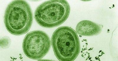 La Nación / Lago Ypacaraí en terapia intensiva: analizan estrategias para mitigar las cianobacterias